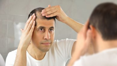 Photo of Bald or Hair loss problems and solutions